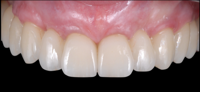 Edentulous Implant Solutions – From Patient to Treatment to Final